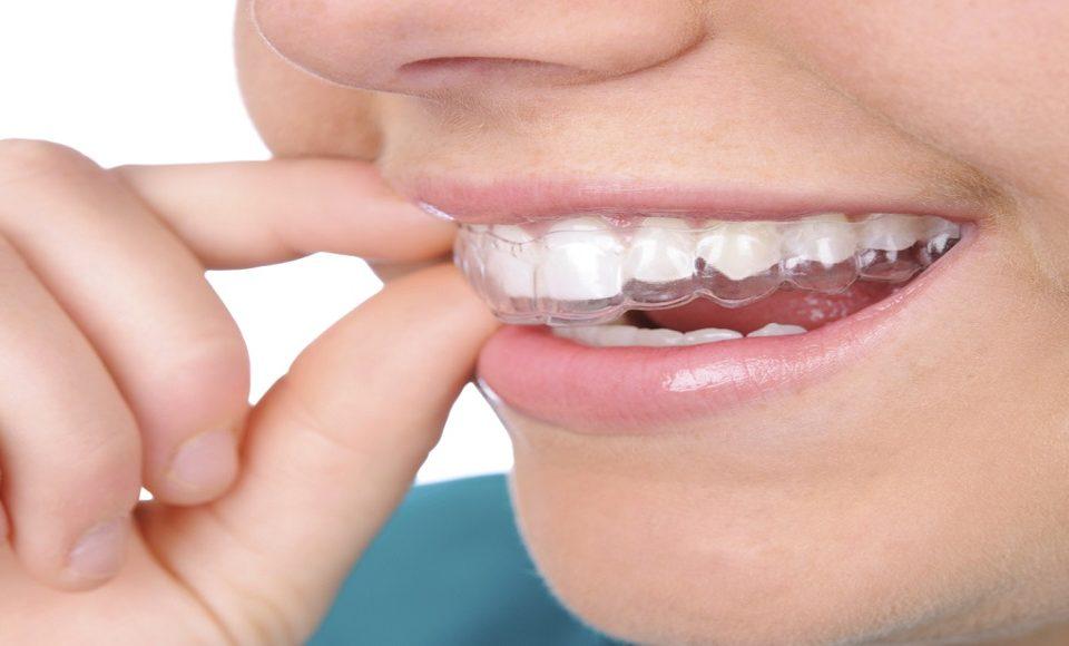 شغل کارشناسی پروتز دندان